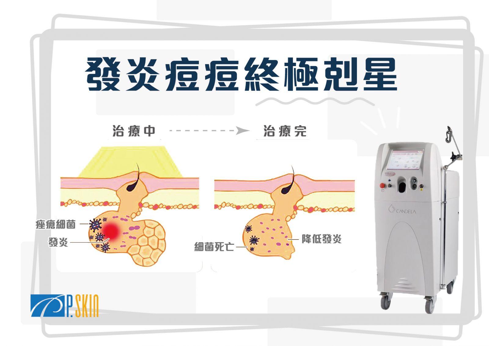 料雷射可以達到殺菌的作用,對於痘痘中的痤瘡桿菌消除效果好