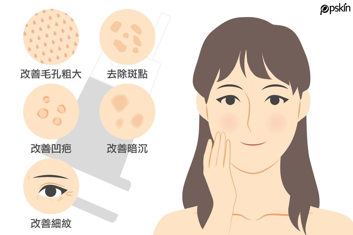 皮秒雷射可以說是肌膚保養的理想選擇,定期治療能夠去斑、改善凹疤、縮小毛孔、緊緻肌膚等
