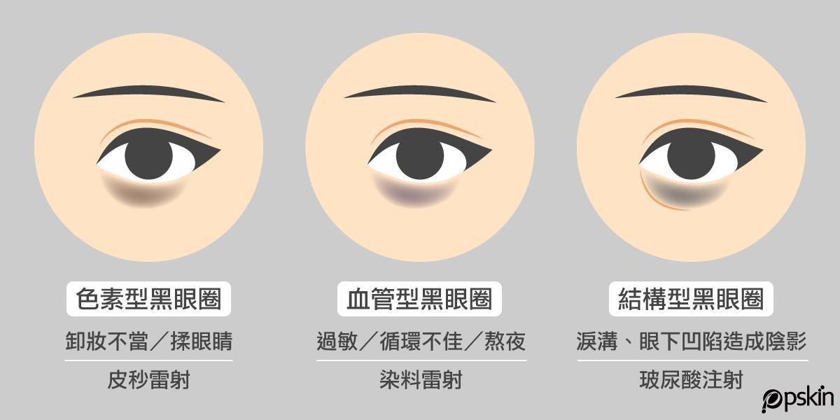黑眼圈共有三種類型