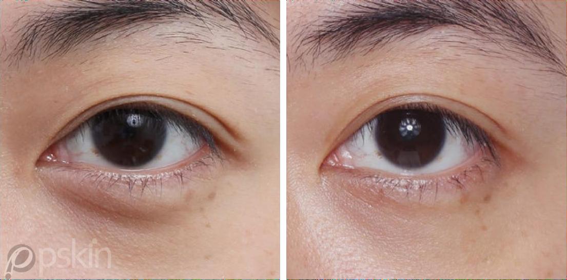 眼周注射抗老治療,有玻尿酸、舒顏萃(童妍針)、艾麗斯(俗稱精靈針)供選擇