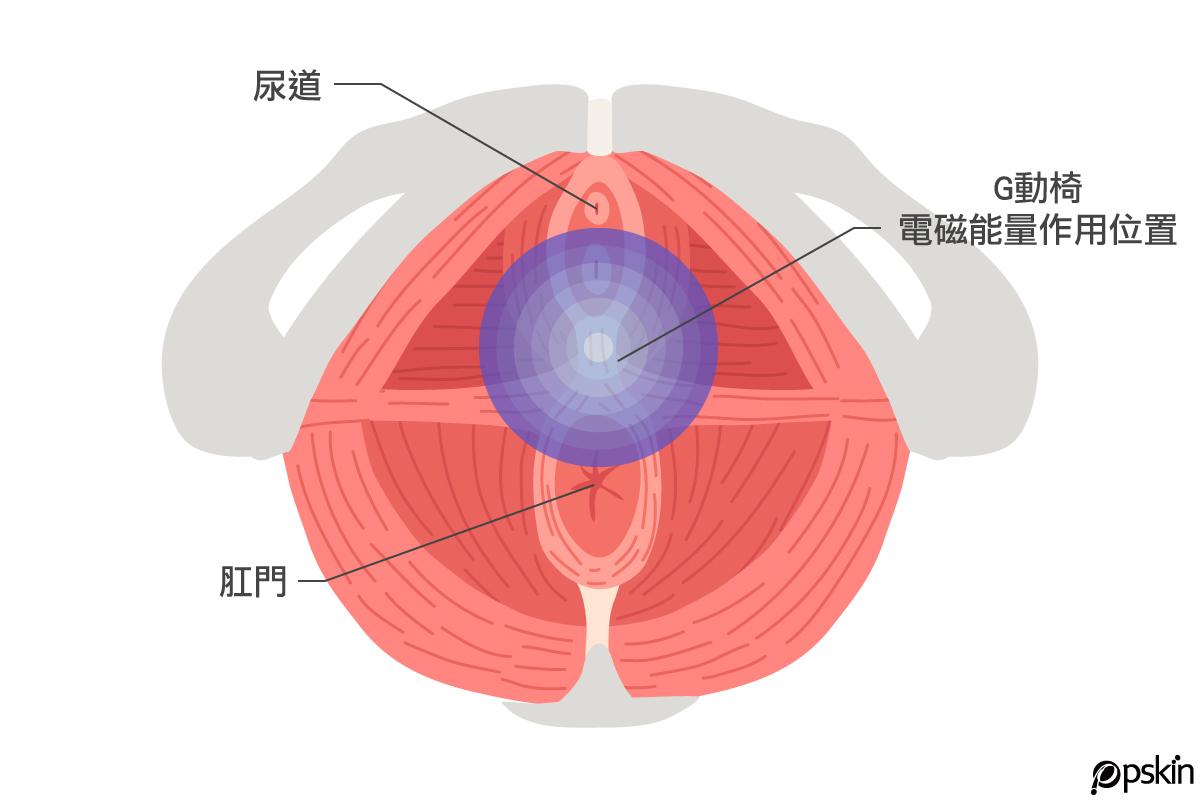 而女生G動椅正確的治療位置就位在尿道及肛門之間,