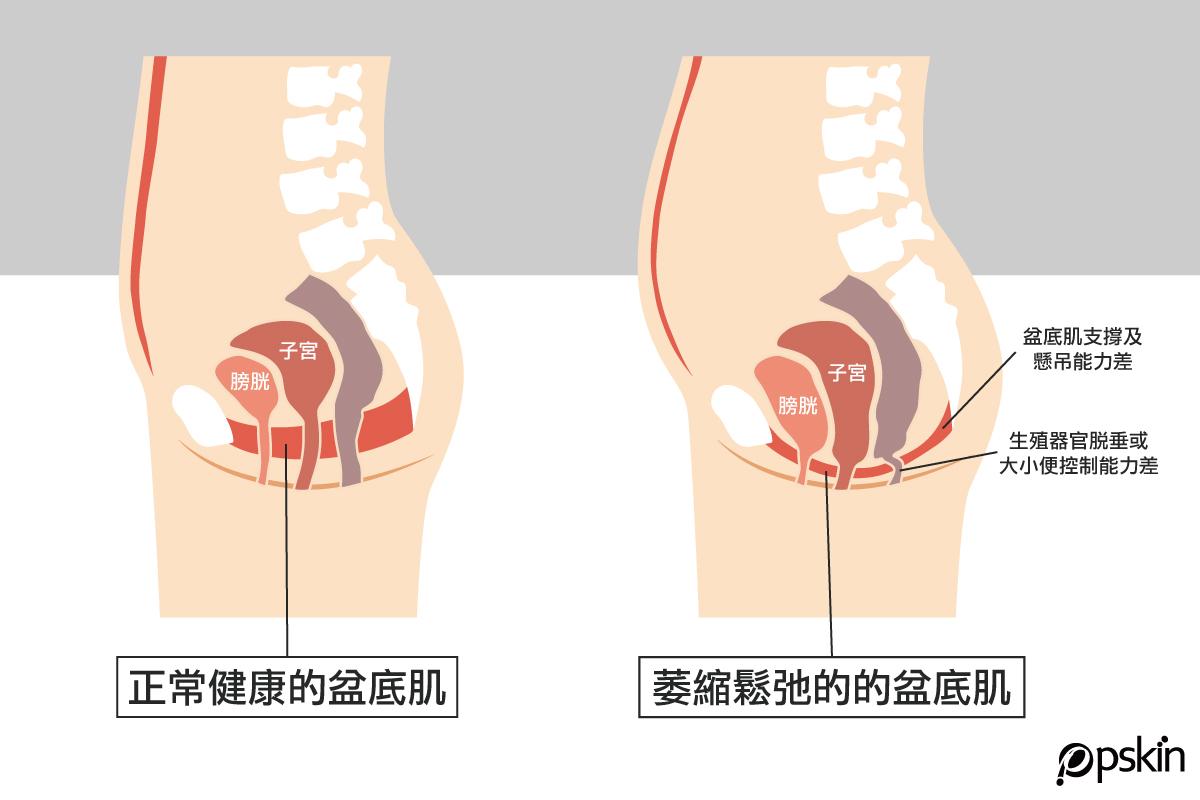 盆底肌鬆弛會造成腹補器官也受影響
