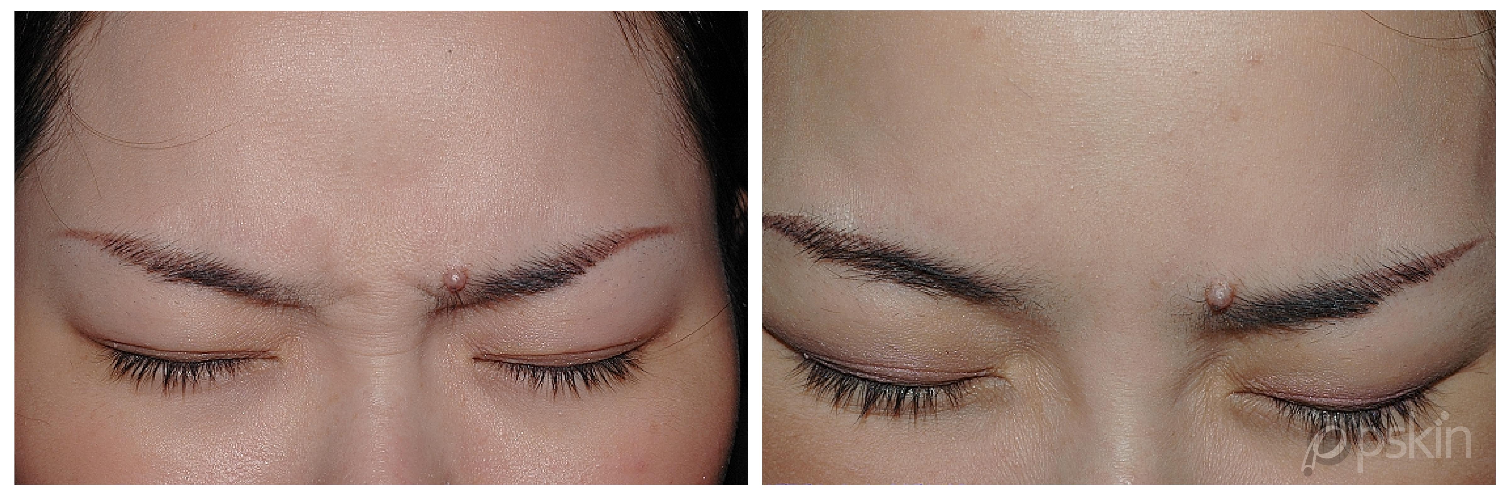 肉毒桿菌治療皺眉紋