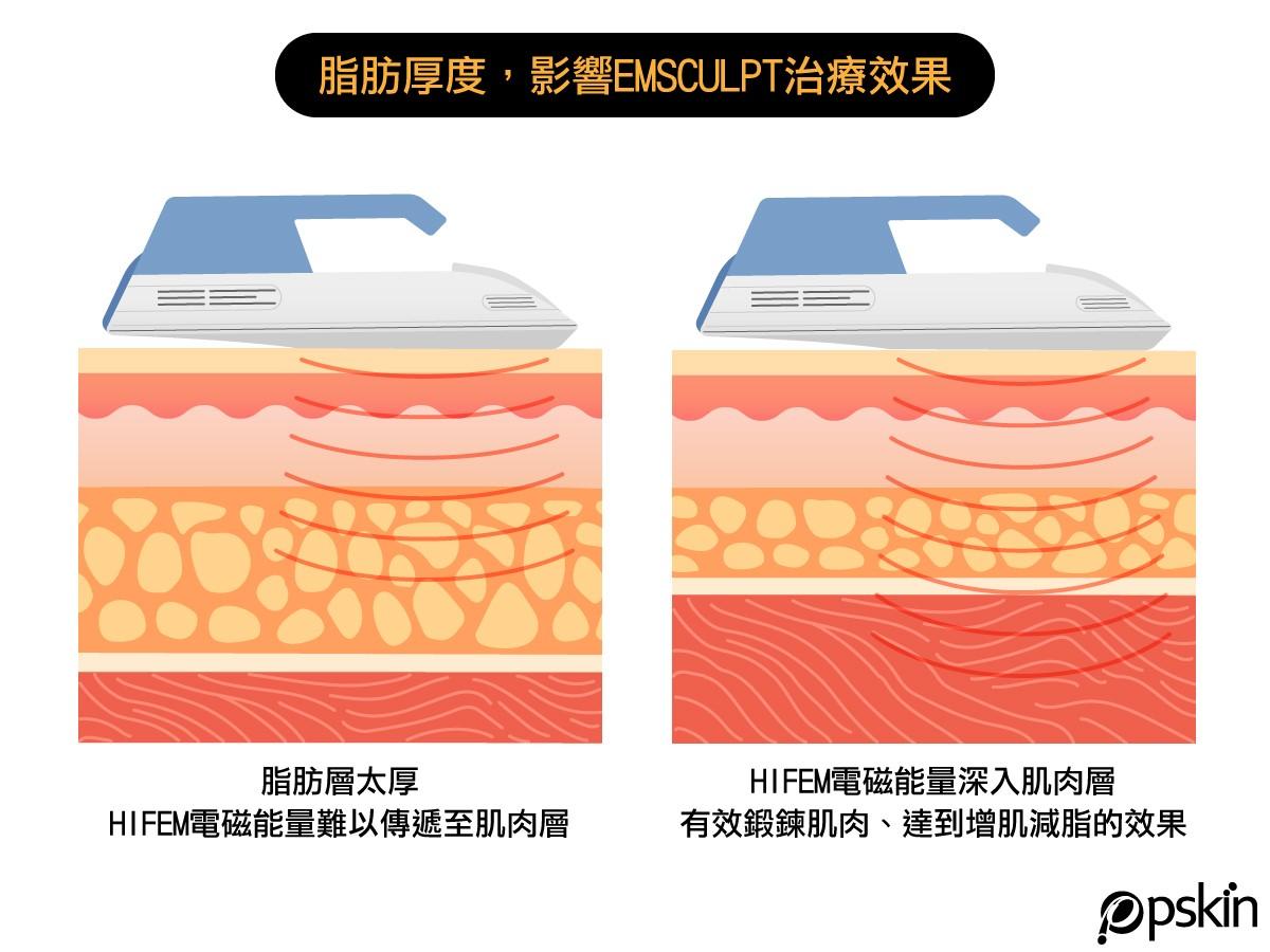 脂肪號度影響EMSCULPT肌動減脂效果