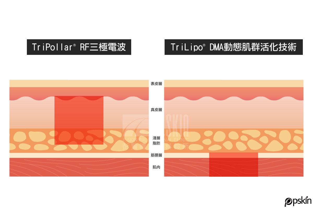 Pollogen LEGEND傳奇電波作用原理