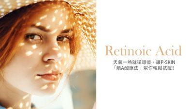 summer-acne-treatment