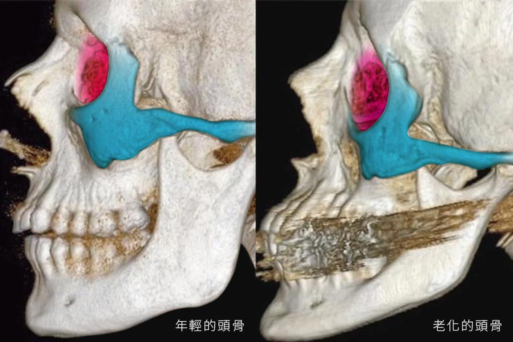 老化導致的骨架流失